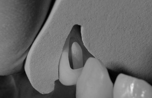 odontoiatria conservativa 5 (1)