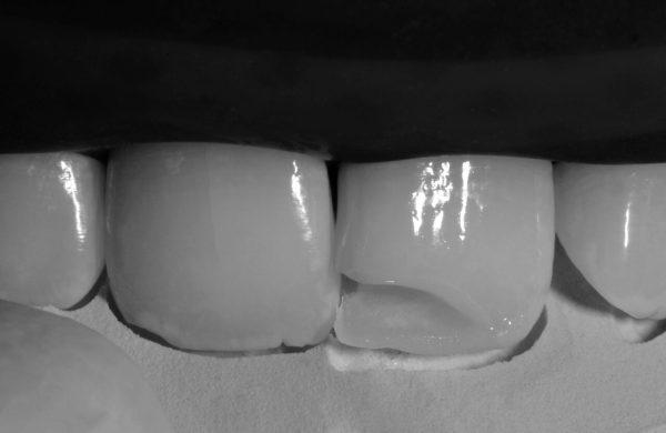 odontoiatria conservativa 7 (1)