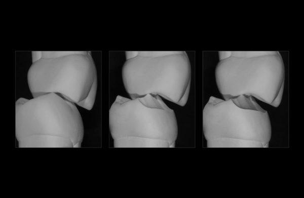corso-Odontoiatria-restaurativa-indiretta-Allegri-1