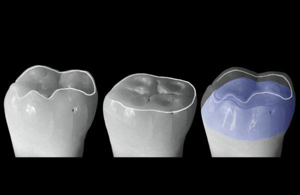 corso-Odontoiatria-restaurativa-indiretta-Allegri-2