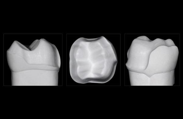 corso-Odontoiatria-restaurativa-indiretta-Allegri-3