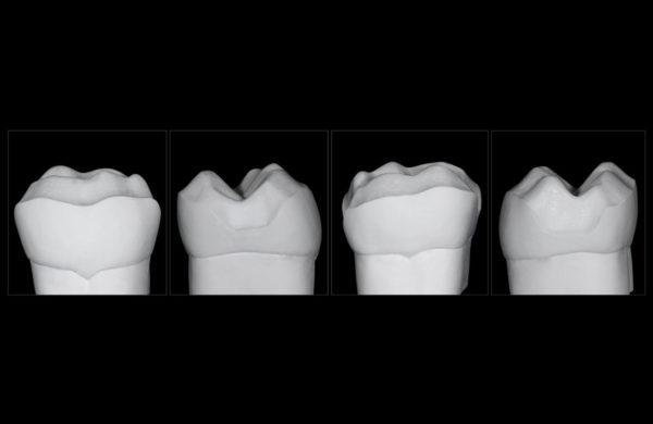 corso-Odontoiatria-restaurativa-indiretta-Allegri-4