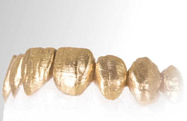 modellazione con resine composite