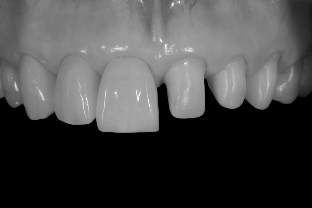 Protesi Denatia