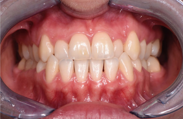 diagnosi-ortodontica-1