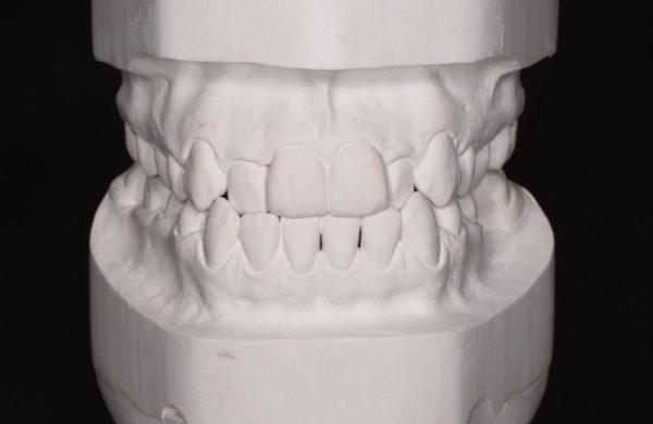 diagnosi-ortodontica-4