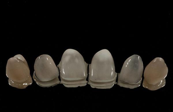 protesi-dentale-fissa-6