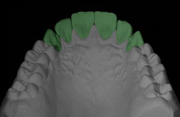 protesi-dentale4
