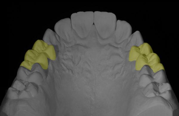protesi-dentale5