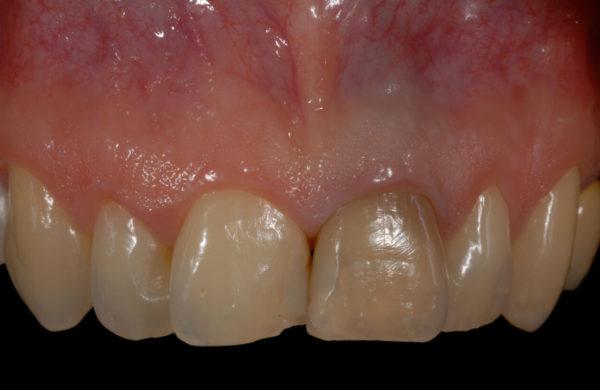 caso-odontoiatria-estetica-allegri-1