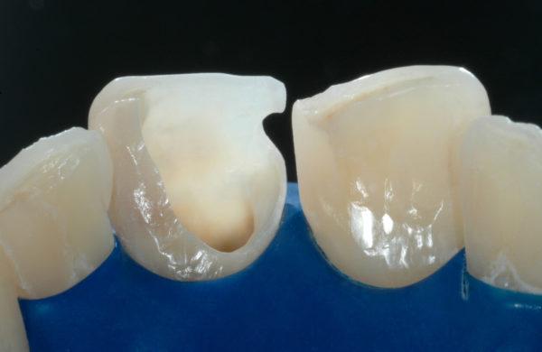 caso-odontoiatria-estetica-allegri-2