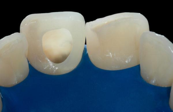 caso-odontoiatria-estetica-allegri-3