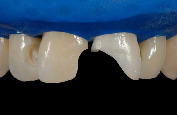 caso-odontoiatria-estetica-allegri-5