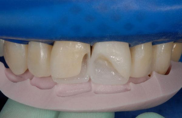 caso-odontoiatria-estetica-allegri-7